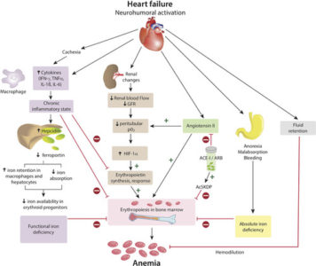 Illustration of How To Deal With Cardiomegaly Accompanied By Anemia?