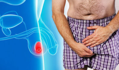 Illustration of Causes And Ways To Overcome A Lump In The Testicles Accompanied By A Sore Waist?