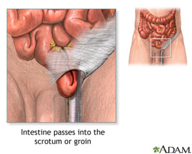 Illustration of The Right Egg Is Swollen After A Hernia Operation?