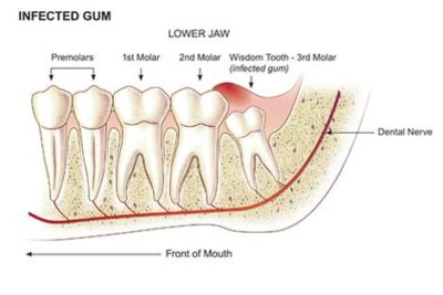 Illustration of Wisdom Teeth Have Not Yet Grown At The Age Of 26 Years?