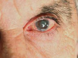 Illustration of Does Glaucoma Can Cause The Effects Of Other Diseases?