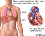 Relationship Of Heart Swelling With A Large Stomach?