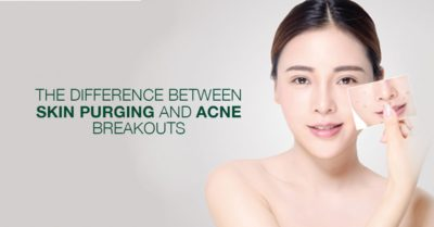 Illustration of Pimples Appear After Using New Skincare?
