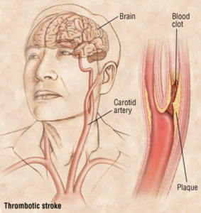 Illustration of Memory Loss And Paralysis In Bleeding Strokes?