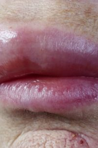 Illustration of Swelling And Swelling On The Lips After Ingestion Of Pain Medications?