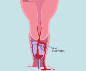 Illustration of How To Deal With Menstrual Leakage?