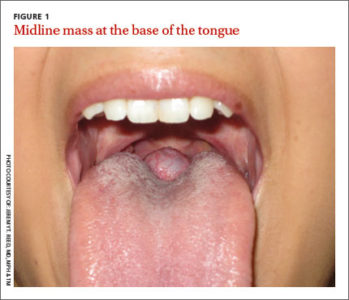 Illustration of Lumps On The Base Of The Tongue Is It Cancer Of The Tongue?