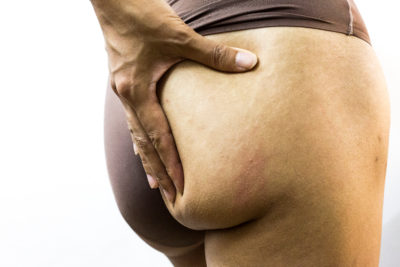 Illustration of Causes Of Swollen Buttocks After Birth Control?