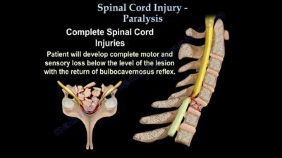 Illustration of Paralysis After Spinal Cord Injury?
