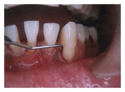 Illustration of How To Deal With Suppurating Gums That Never Heal?