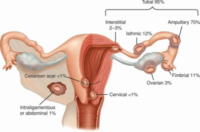 Illustration of Explanation Of Twin Pregnancy In An Ectopic Pregnancy?