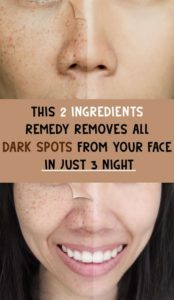 Illustration of How To Deal With Facial Skin That Has Been Exposed To Facial Cream That Has Been Stained?