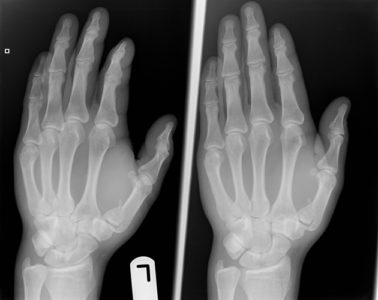 Illustration of Metacarpal Fractures For More Than 3 Weeks?
