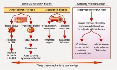 Illustration of Mechanisms Of Chest Pain In Myocardial Infarction Patients?