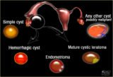 Differences In Blood Cysts And Ovarian Cysts?