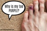 The Nails On The Big Toe Turn Blue After Wearing Narrow Shoes?
