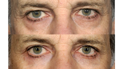 Illustration of What Steps Should Be Taken Before Eye Bags Surgery?