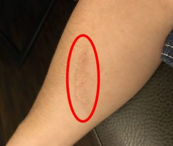 Illustration of Treatment Of Scars Falling From The Motor?