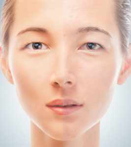 Illustration of Solution To Overcome Dry Skin And Wrinkles After The Use Of Facial Creams?