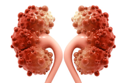 Illustration of Causes And Treatment Of Cysts In The Kidneys?