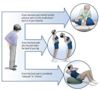 Illustration of Treatment For Low Back Pain?