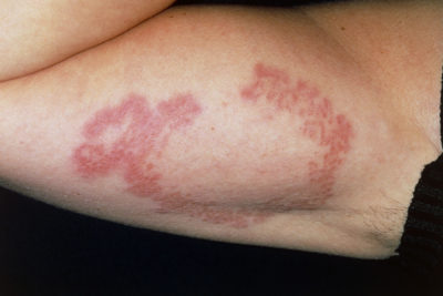 Illustration of Lumps In The Legs That Spread In People With Diabetes?