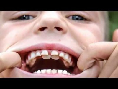 Illustration of Tooth Growth In Children Aged 2 Years?