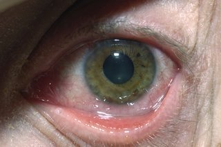 Illustration of Eyes Sore, Swollen And Redden More Than A Week?