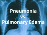 Can Pulmonary Edema Be Treated Surgically?