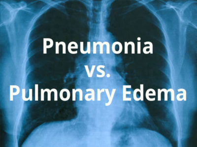 Illustration of Can Pulmonary Edema Be Treated Surgically?