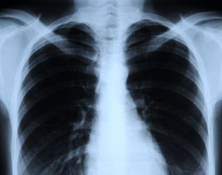 Illustration of Is It True That The X-rays Show That They Are Clean From Tuberculosis?