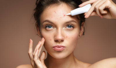 Illustration of Product Selection To Get Rid Of Acne Scars?