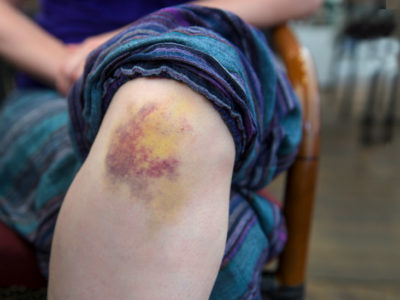 Illustration of What Causes The Appearance Of Bruising Behind The Knee Accompanied By Festering Spots?