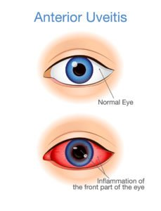 Illustration of Are The Symptoms Of Posterior Uveitis Curable?