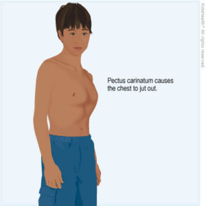 Illustration of The Cause Of The Right Body Is Bigger Than The Left?