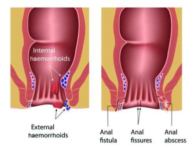 Illustration of How To Deal With Blood Loss In Patients With Perianal Abscesses?