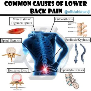 Illustration of Causes Of Spinal Pain After Heavy Work?