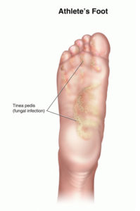 Illustration of Fungal Infections Occur And The Feet Feel Itchy?