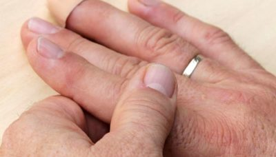 Illustration of The Ring Finger Feels Pain When Moved?