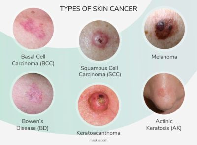 Illustration of Like What Are The Signs Of Melanoma On The Skin?
