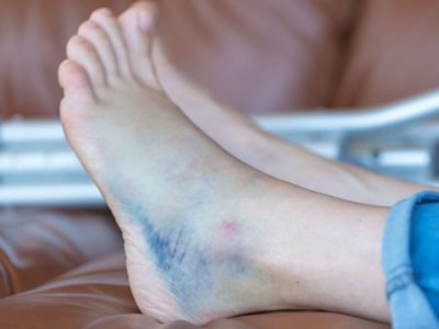 Illustration of Feet Bruised And Blackened After Falling?