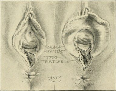 Illustration of Do Open Perineal Rupture Wounds Heal By Themselves?