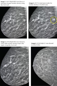 Illustration of Ultrasound Examination Results Mammography?
