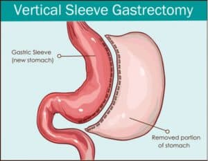 Illustration of Anxious Arises, Tightness And Vomiting After Stomach Surgery Leak?