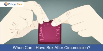 Illustration of When Can Intercourse After Laser Circumcision?