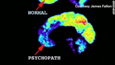 Illustration of What Are The Signs And Symptoms Of Psychopaths?