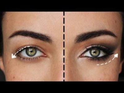 Illustration of The Tip Of The Eyelids Are Brown?