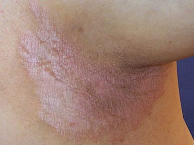 Illustration of White Patches Feel Itchy After Shaving The Pubic Hair?