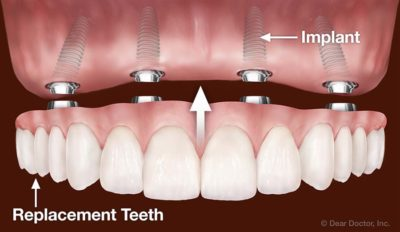 Illustration of Conditions For Changing The Use Of Dentures To Implants?