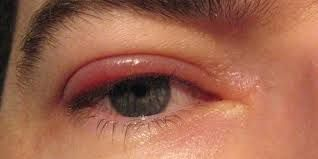 Illustration of Around The Red And Swollen Eyelids?
